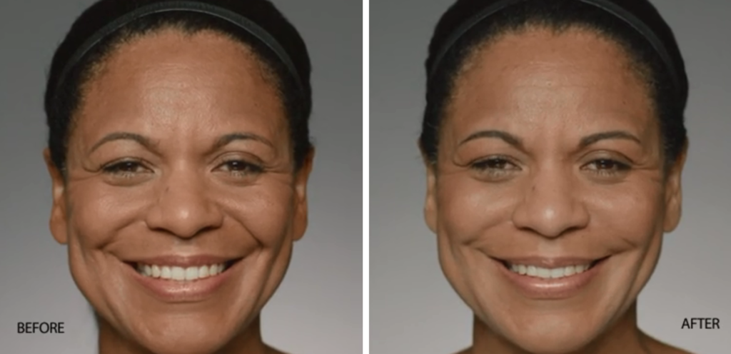 Restylane Refyne | skin care | Novique Medical Aesthetics | Doylestown, PA