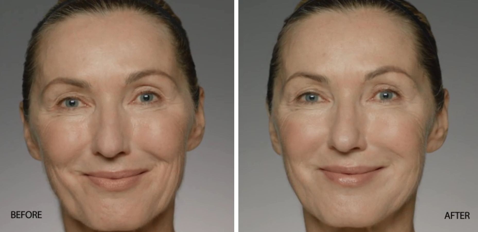 Restylane Refyne Before and After | skin care | Novique Medical Aesthetics | Doylestown, PA