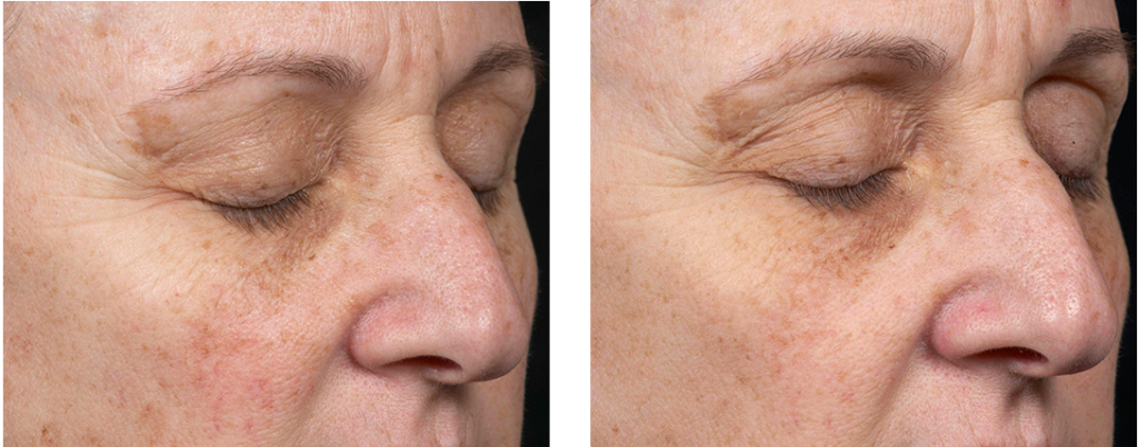 Clear + Brilliant Before and After | skin care | Novique Medical Aesthetics | Doylestown, PA