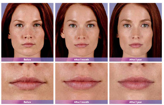 Juvederm Ultra Plus XC Before and After Doylestown & Bucks County, PA