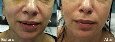 RF Microneedling   skin care   Novique Medical Aesthetics   Doylestown, PA