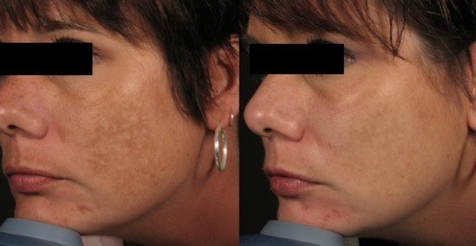 Dermalinfusion Before & After Doylestown PA