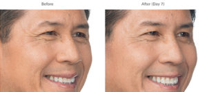 Brotox (Botox For Men) Doylestown, PA