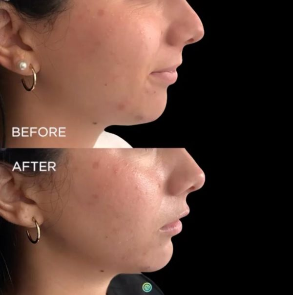 botox filler treatment before and after | skin care | Novique Medical Aesthetics | Doylestown, PA