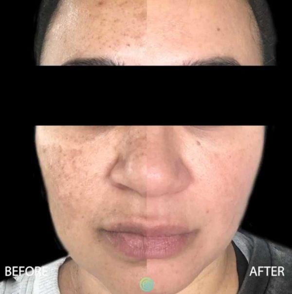 Skin rejuvenation treatment   skin care   Novique Medical Aesthetics   Doylestown, PA