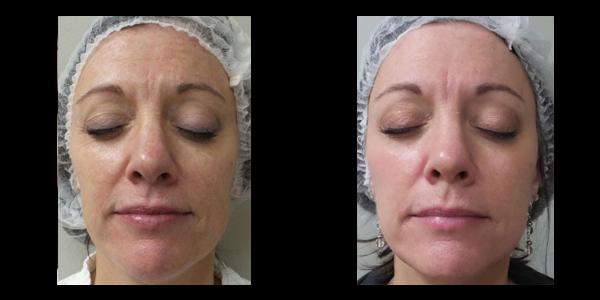 Halo skin acne removal treatment patient 4 | skin care | Novique Medical Aesthetics | Doylestown, PA