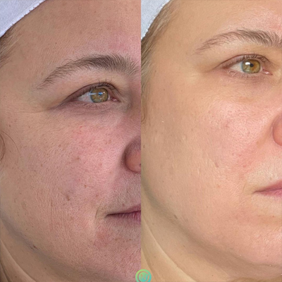 checmical-peel-before-and-after-img-2